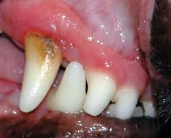 Mild Dental Disease